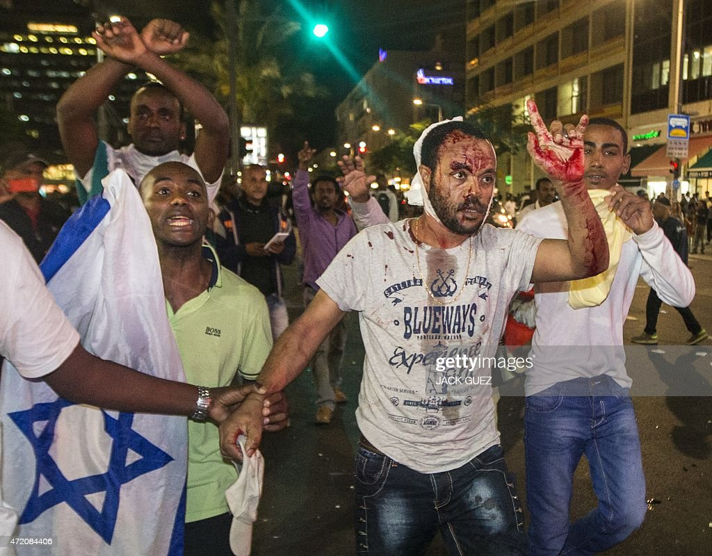 A Israeli man from the Ethiopian community is wounded after clashes with Israeli security forces in the coastal city of Tel Aviv on May 3 during a...