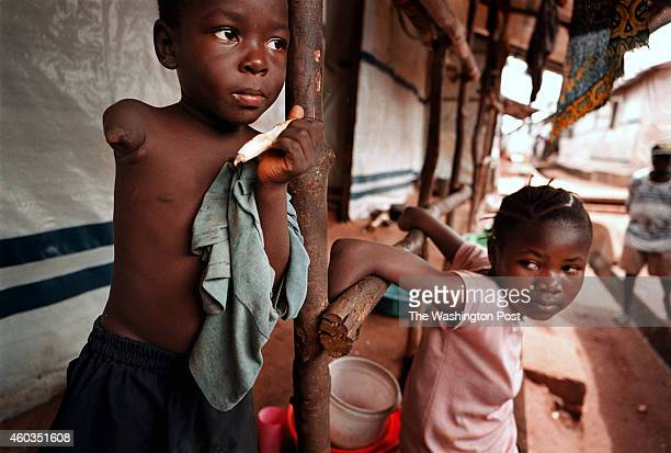 Isutu Kargbo who had both arms amputated in the January 1999 rebel attack on Freetown stretches her limbs at a special amputee camp on Nov 3 1999 in...