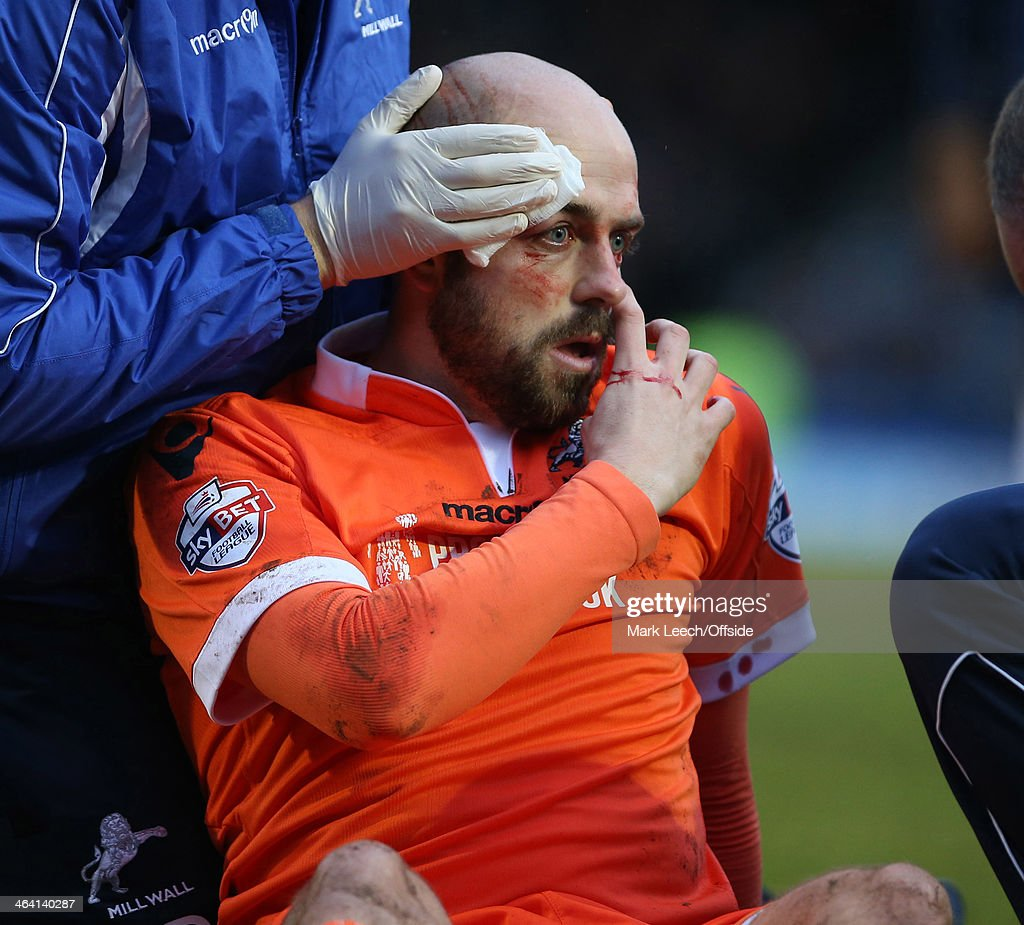Jack Smith of Millwall receives treatment for a head wound during the FA Cup Third Round match between Southend and Millwall at Roots Hall on January 4, 2014 in Southend, England.