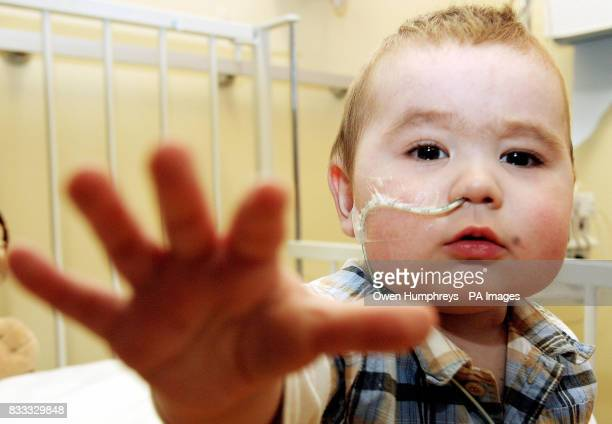 Jack Vellam 13 months who has become the worlds first baby to survive for 120 days on an external artificial heart