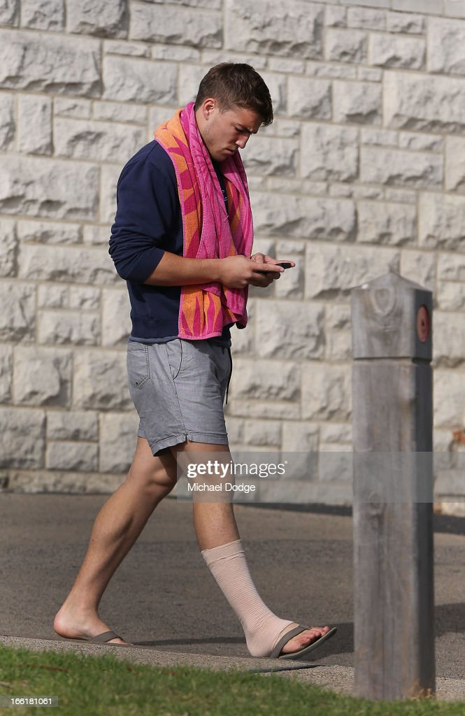 Jack Viney of the Demons is seen walking with a compression bandage on his leg during a camp for Melbourne Demons AFL players and coaching staff at Sorrento on April 10, 2013 in Melbourne, Australia.