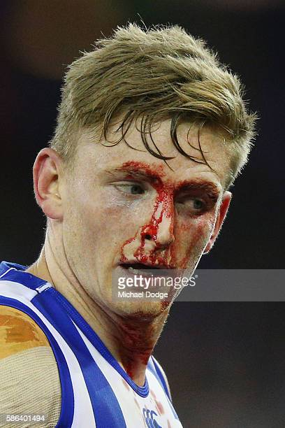 Jack Ziebell of the Kangaroos comes off injured during the round 20 AFL match between the Western Bulldogs and the North Melbourne Kangaroos at...