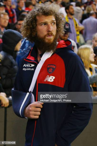 Jake Spencer of the Demons looks dejected as he walks off injured after defeat during the round five AFL match between the Richmond Tigers and the...