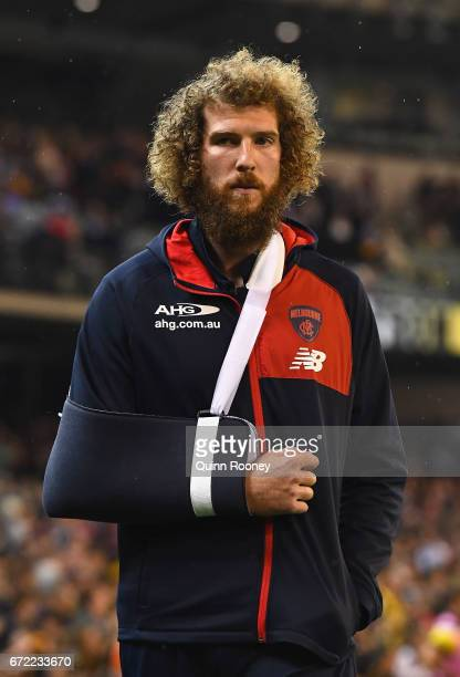 Jake Spencer of the Demons walks around the boundary with his arm in a sling during the round five AFL match between the Richmond Tigers and the...