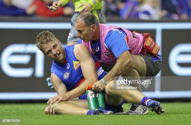 Jake Stringer of the Bulldogs leaves the field injured during the round seven AFL match between the Western Bulldogs and the Richmond Tigers at...