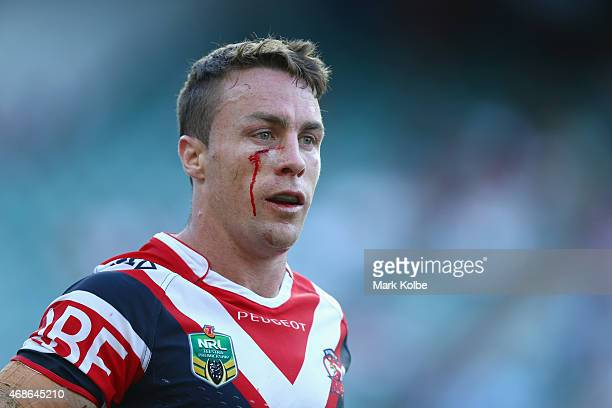 James Maloney of the Roosters bleeds from a cut under his eye during the round five NRL match between the Sydney Roosters and the Cronulla Sharks at...