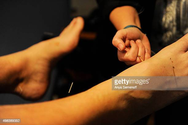 Jana Morian conducts a moxa treatment used to help energy levels pain and inflammation at Inspired Wellness Center on November 13 in Arvada Colorado...