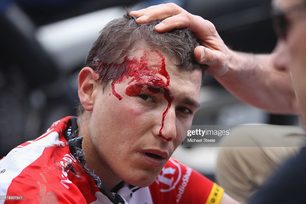 Janez Brajkovic of Slovenia and team Radioshack is dazed after a heavy fall during Stage 5 of the 2011 Tour de France from Carhaix to Cap Frehel on July 6, 2011 in Cap Frehel, France.
