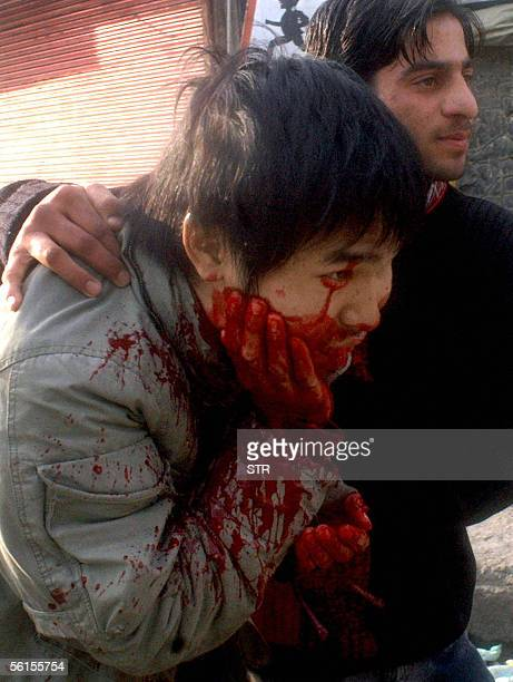 Japanese freelance journalist Takeshi Sakuragi is assisted on being injured during a shoot out in Lal Chowk in Srinagar 14 November 2005 Indian...
