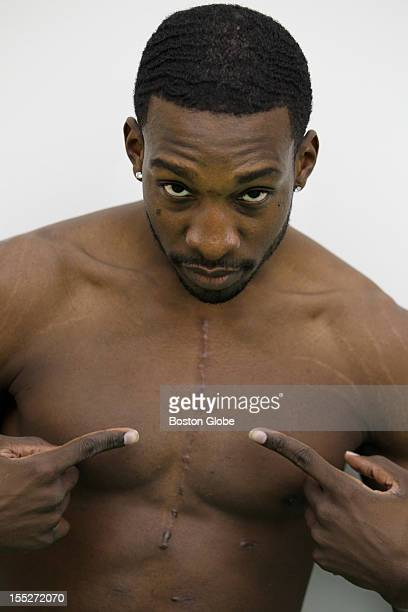 Jeff Green of the Boston Celtics shows his scar from surgery to repair an aortic aneurysm after practice at Healthpoint in Waltham