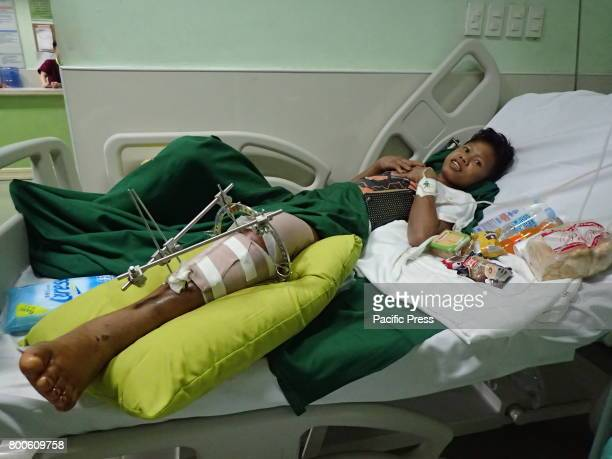 Jemuel Rote a 20 years old Catholic was shot on June 11 2017 during the crossfire between government troops and Maute/ISIS terrorist group in Marawi...