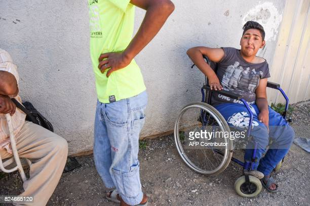 Jetullah Veliu 16yearsold sits on a wheelchair along a street in the Roma neighborhood in the town of Mitrovica on July 7 2017 The Roma 'are not...