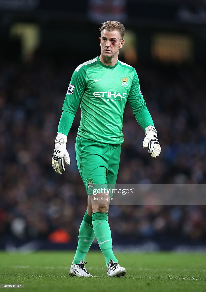 <a gi-track='captionPersonalityLinkClicked' href=/galleries/search?phrase=Joe+Hart&family=editorial&specificpeople=1295472 ng-click='$event.stopPropagation()'>Joe Hart</a> of Manchester City looks on after sustaining an eye injury during the Barclays Premier League match between Manchester City and Crystal Palace at the Etihad Stadium on December 28, 2013 in Manchester, England.