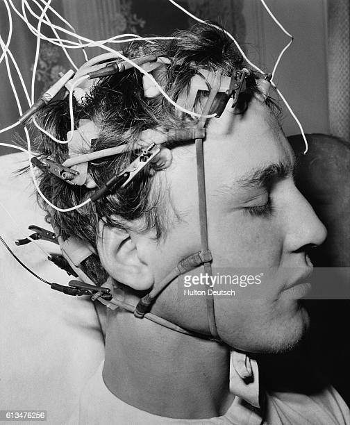 Joe Pickard with 14 electrodes fixed to his scalp to record the rythmic electrical signals sent out by his brain The wires lead away to an...