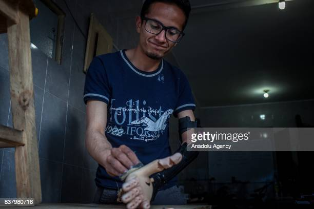 Johan Garcia 26yearold is seen with his '3D arm prosthesis made by volunteers of the nonprofit project 'Do it yourself' with 3D printer making a part...