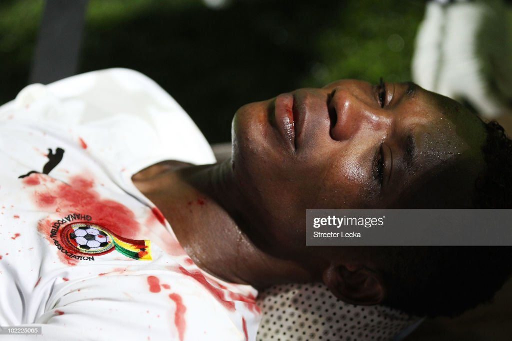 John Pantsil of Ghana receives treatment for a facial injury during the 2010 FIFA World Cup South Africa Group D match between Ghana and Australia at the Royal Bafokeng Stadium on June 19, 2010 in Rustenburg, South Africa.