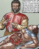 John Thomas Porcell Spanish doctor Autopsy Colored engraving