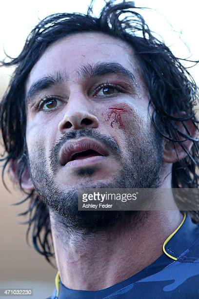 Johnathan Thurston of the Cowboys walks off the ground with blood on his face during the round eight NRL match between the Newcastle Knights and the...