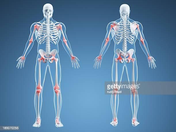 Dolor articular medio