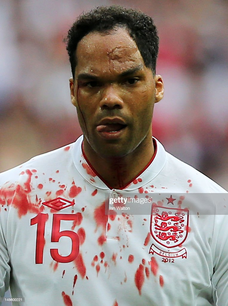 Joleon Lescott of England is injured during the international friendly match between England and Belgium at Wembley Stadium on June 2, 2012 in London, England.