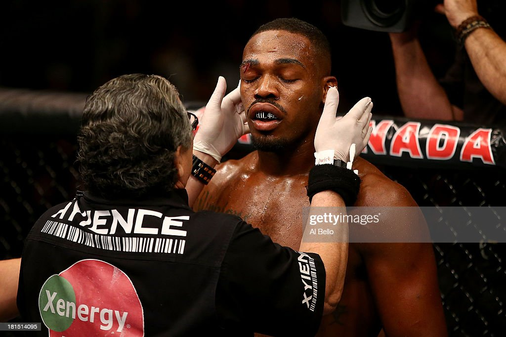 Jon 'Bones' Jones is treated by Jacob 'Stitch' Duran in their UFC light heavyweight championship bout at the Air Canada Center on September 21, 2013 in Toronto, Ontario, Canada.