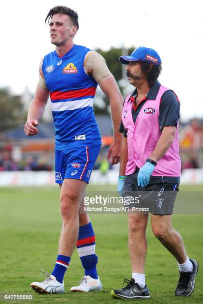 Jordan Roughead of the Bulldogs hobbles off after sustaining a leg injury during the 2017 JLT Community Series match between the Western Bulldogs and...