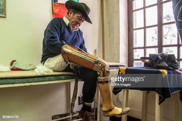Jose has been using a wooden prosthesis weighing of about 17 kilograms for more than 20 years His new prosthesis does not weight more than 2...