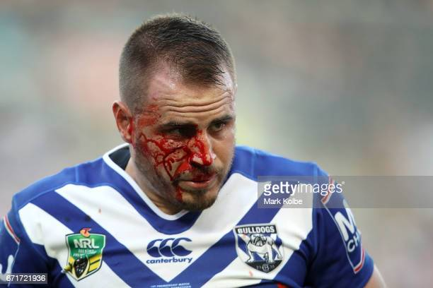 Josh Reynolds of the Bulldogs bleeds from a cut on his cheek during the round eight NRL match between the Wests Tigers and the Canterbury Bulldogs at...