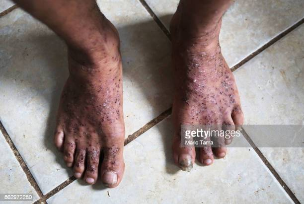 Juan Cordero stands displaying his injured feet covered in ant bites before being treated by an agent from the Special Response Team with US...