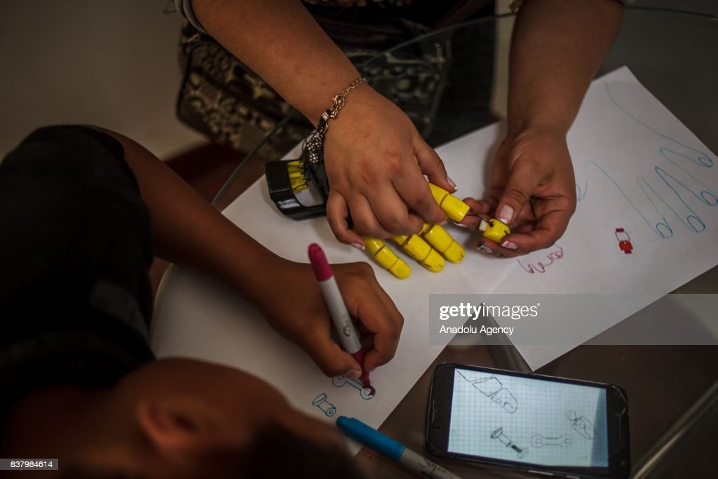 Julian Castillo (R) and his aunt Briyid Castillo design a 3D printed hand for Julian at Foundation of Materialization 3D in Bogota, Colombia August 08, 2017. A group of volunteers of the nonprofit project 'Do it yourself' of Foundation of Materialization 3D provide hands and arms to those born with missing limbs or who lost them on war, disease or natural disaster, at the Build It Workspace studio, which teaches people how to use high-tech printers.