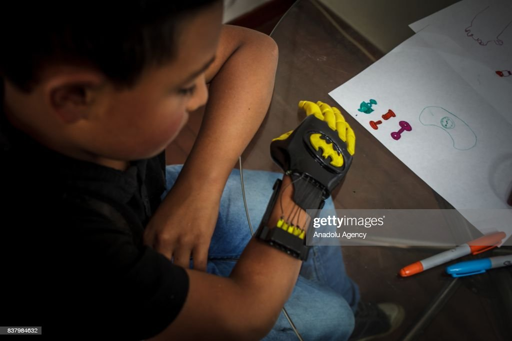 Julian Castillo looks his newly designed 3D printed hand with a Batman logo on it at Foundation of Materialization 3D in Bogota, Colombia August 08, 2017. A group of volunteers of the nonprofit project 'Do it yourself' of Foundation of Materialization 3D provide hands and arms to those born with missing limbs or who lost them on war, disease or natural disaster, at the Build It Workspace studio, which teaches people how to use high-tech printers.