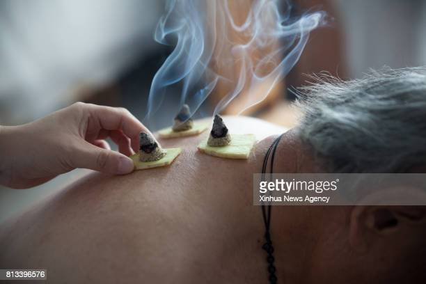 ZIBO July 12 2017 A doctor carries out moxibustion for a patient at Gaoqing Hospital of Traditional Chinese Medicine in Gaoqing east China's Shandong...
