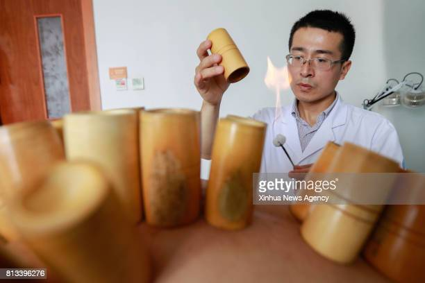 HUAIAN July 12 2017 Doctor An Lifei carries out cupping therapy for a patient at Xuyi Hospital of Traditional Chinese Medicine in Xuyi County east...