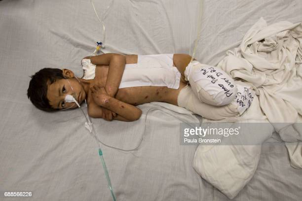 Kabir age 5 from Faryab lays in bed at the Emergency hospital in Kabul on April 3 2016 He is a victim of a rocket attack lost both of his legs along...