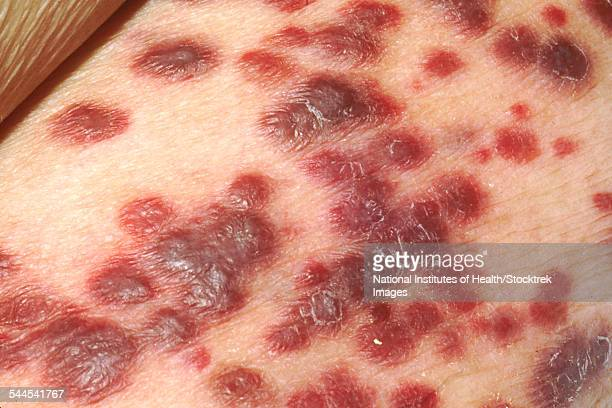 Kaposis sarcoma on the skin of an AIDS patient.