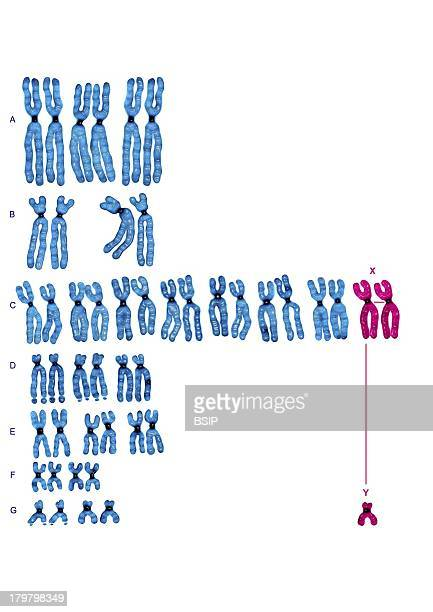 Karyotype Chromosomes Are Sorted Here By Group According To The Classification Of Denvers The Pair Xx Girl Or Xy Boy Determins The Sex