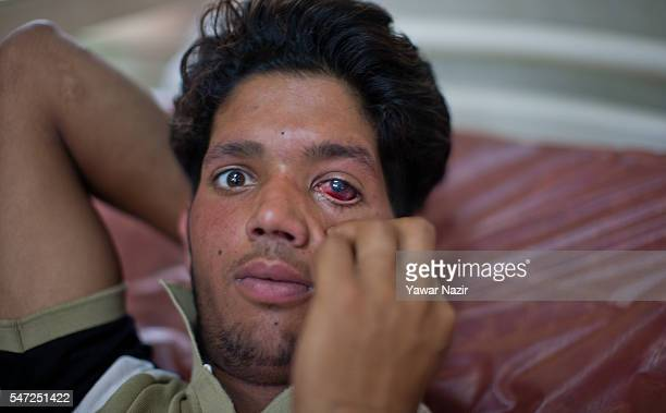 Kashmiri boy lies wounded after pellets of Indian government forces hit him and damaged his eye during curfew after the killings of 39 Kashmir by...