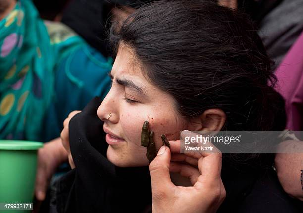 Kashmiri Muslim woman receives leech therapy on March 21 in Srinagar the summer capital of Indian administered Kashmir India Nowruz the beginning of...