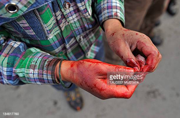 A Kashmiri Shiite Muslim wipes blood from his hands after performing a ritual of selfflagellation with knives during a religious procession held on...