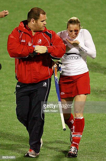 Kate Walsh of England receives treatment for a cut during the Women's Hockey Champions Trophy match between England and the Australian Hockeyroos at...