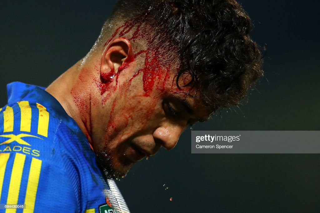 Kaysa Pritchard of the Eels leaves the field for the blood bin during the round 14 NRL match between the Parramatta Eels and the North Queensland Cowboys at TIO Stadium on June 10, 2017 in Darwin, Australia.