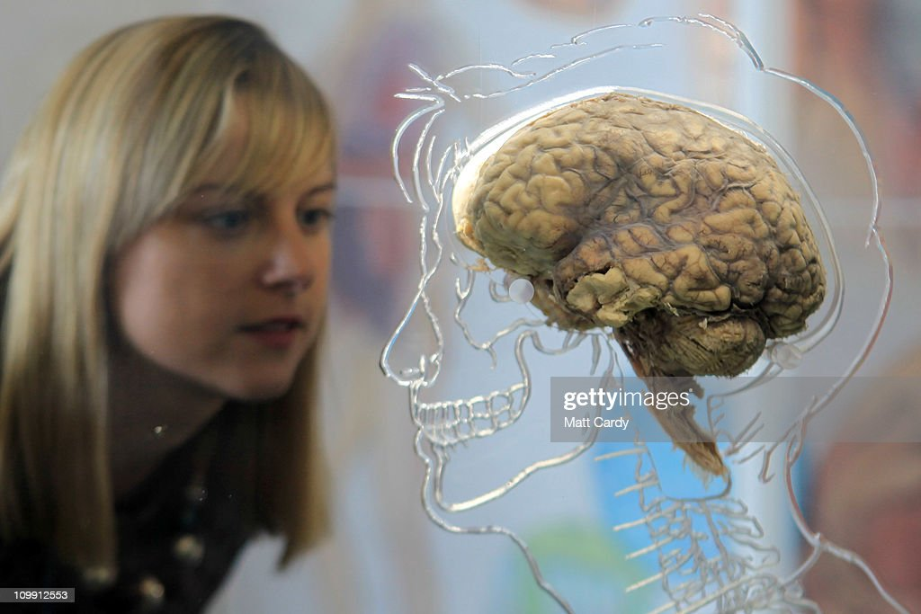 Kerrie Grist looks at a real human brain being displayed as part of new exhibition at the @Bristol attraction on March 8, 2011 in Bristol, England. The Real Brain exhibit - which comes with full consent from a anonymous donor and needed full consent from the Human Tissue Authority - is suspended in a large tank engraved with a full scale skeleton on one side and a diagram of the central nervous system on the other and is a key feature of the All About Us exhibition opening this week.