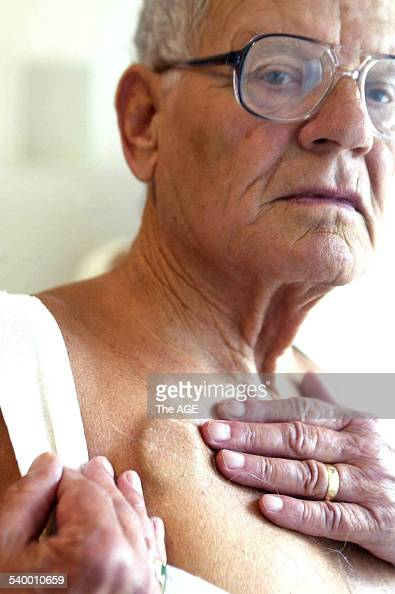 Kevin Courtney aged 71 shows where a replacement pacemaker was implanted 5 February 2003 THE AGE Picture by CRAIG ABRAHAM