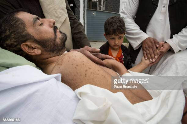 Khair Mohammed a paraplegic lays in bed outside his ward as friends and relatives visit him at the emergency hospital as his daughter Madina looks...