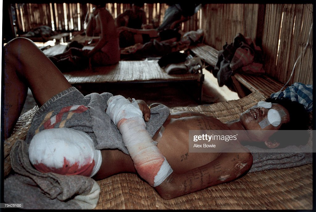 A Khmer Rouge guerilla fighter, blinded by the grenade which also took his leg during a battle with Vietnamese troops, recuperates at the International Red Cross hospital at Khao-I-Dang refugee camp on the Thai-Cambodian border, 15th April 1983.
