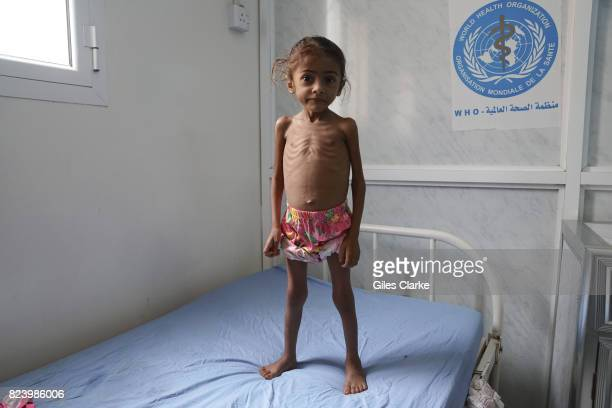 Kholod aged 3 stands on a hospital bed shortly after being admitted to the pediatric ward for treatment She suffers from severe acute malnutrition...