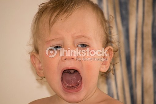 Kid With Atopic Dermatitis Shouts Open Mouth Throat Seen ...
