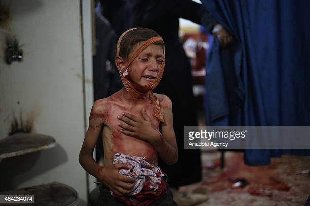 A kid wounded by Assad regime forces vacuum bomb airstrike staged to a bazaar inside residential areas wait to receive treatment in Douma Town of...