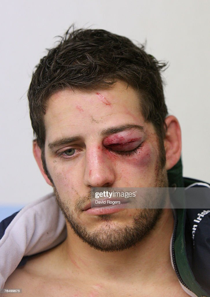 Kieran Roche of London Irish sits in the dressing room after being punched during the Heineken Cup match between Perpignan and London Irish at Stade...