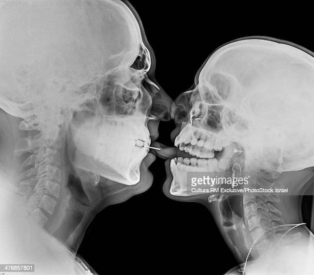 Kissing Couple. Two people kissing under x-ray pierced tongue can be seen